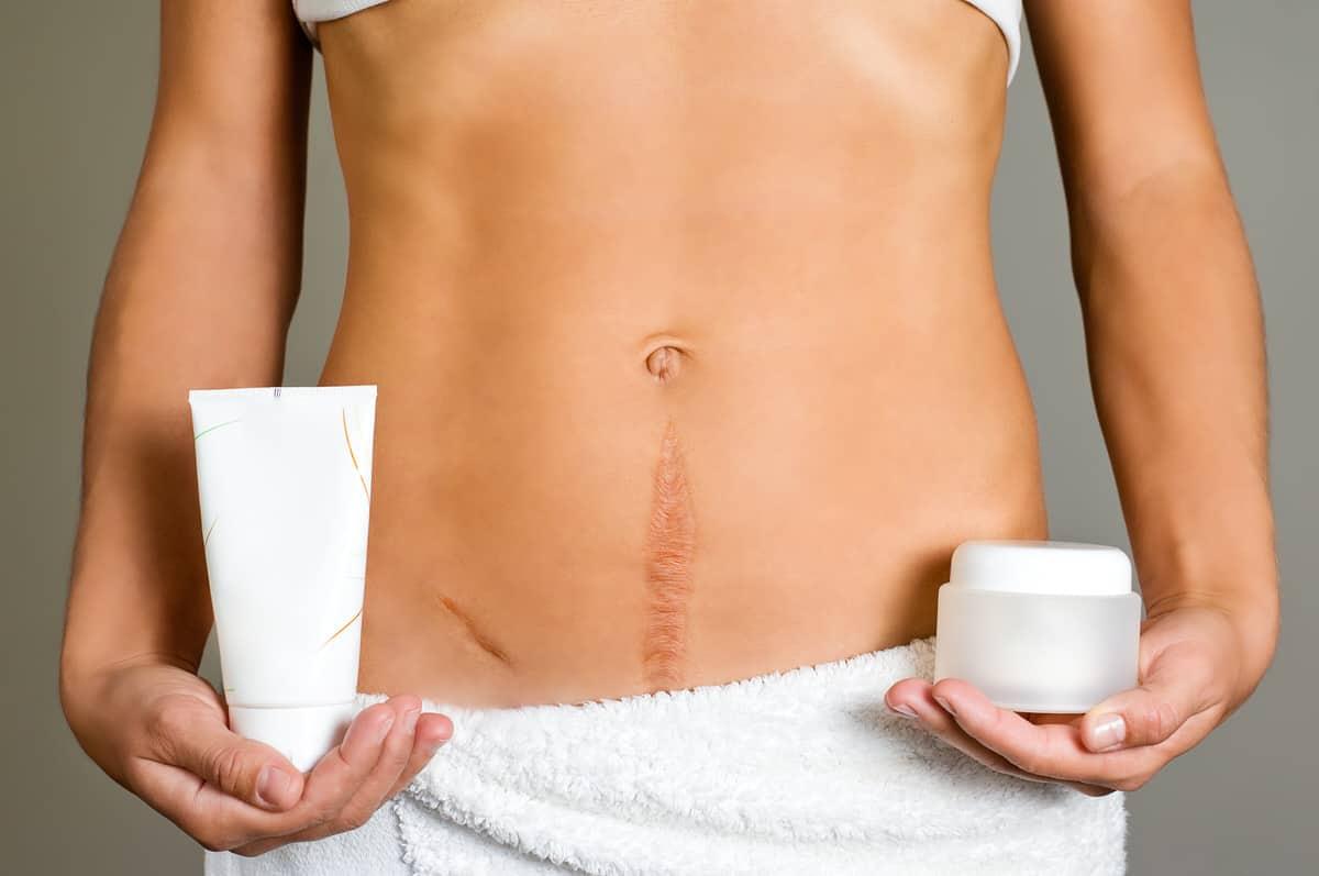 Salben beeinflussen den Heilungsprozess von Narben